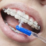 limpieza dental con cepillo interdental o interproximal
