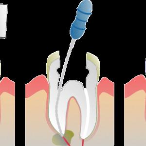 endodoncia o tratamiento de nervio