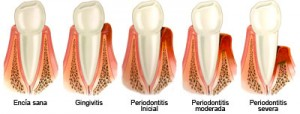 estados salud periodontal