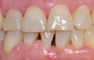 síntomas periodontitis: dientes largos, espacios interdentales